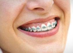 Gambar Orang Memakai atau Menggunakan Kawat Gigi atau Behel