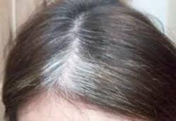 Bahaya Mencabut Rambut Uban