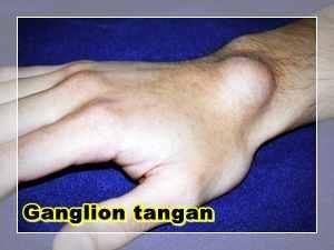Gambar Uci-uci atau Ganglion