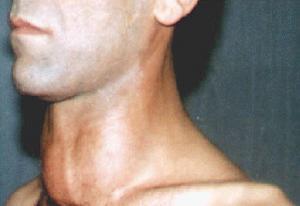 Gambar Orang yang Terkena Gangguan Tiroid