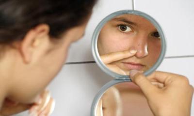 Cara Menghilangkan Komedo di Hidung dan Wajah
