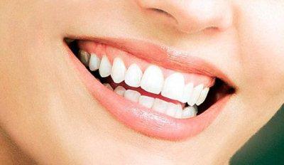 Rahasia Tips Cara Memiliki Gigi Putih Sehat Cemerlang