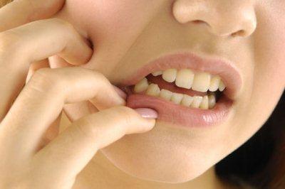 bahaya akibat sakit gigi