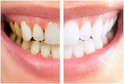 Gambar Cara Menghilangkan Karang Gigi