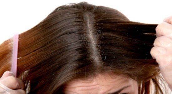 Gambar Ketombe di Kepala