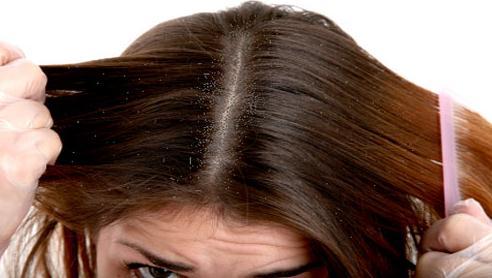 Gambar Rambut Berketombe
